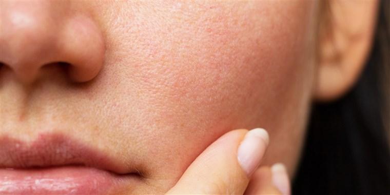 نوع پوست