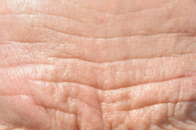 کاهش چین و چروک پوست با ویتامین سی